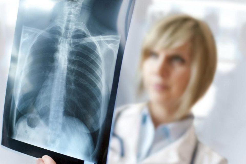 حقایق ناگفته از رادیولوژی و اشعه ایکس