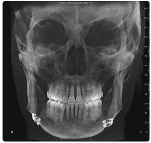 تصویربرداری اشعه ایکس از صورت چطور است؟!