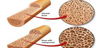 چطور می توان تراکم استخوان را اندازه گیری کرد؟
