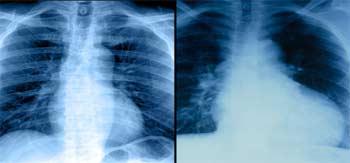 تشخیص بیماری قلبی با اشعه ایکس