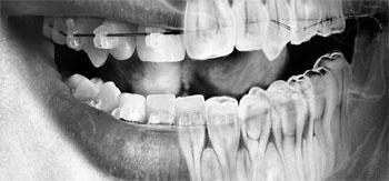 چه زمانی نیاز به رادیولوژی دهان می باشد؟