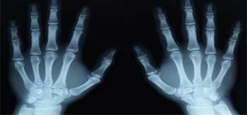 برای رادیولوژی چه آمادگی هایی لازم است؟