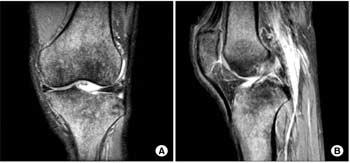 استفاده از MRI برای تشخیص آرتروز