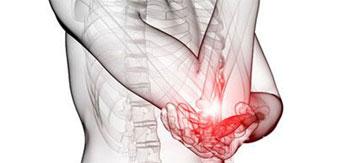 تشخیص سرطان استخوان با رادیولوژی