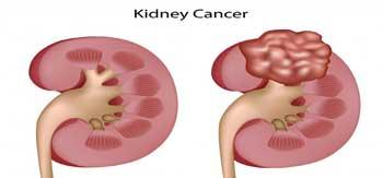 تومورهای کلیوی با رادیولوژی یا سونوگرافی
