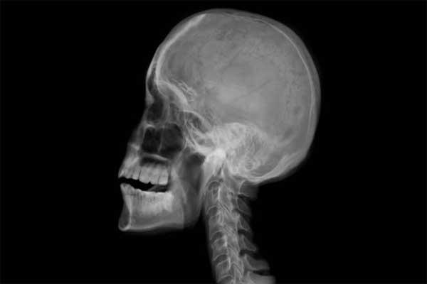 رادیوگرافی جمجمه