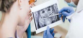 عکسبرداری تشخیصی قبل از ایمپلنت دندان
